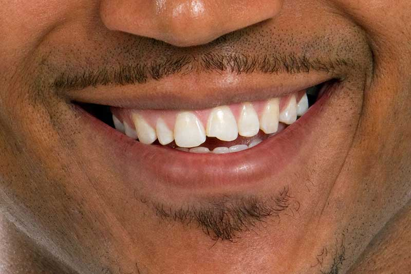 Everything You Need to Know About Dental Bonding